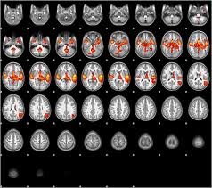 sample narrative report for preschool home reading environment and brain activation in preschool download figure