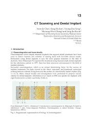 ct scanning and dental implant pdf download available