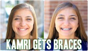 cute girls hairstyles for your crush kamri gets braces behind the braids ep 4 youtube