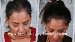 how to stop hair fall how to stop hair loss laser comb hair