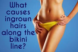 does prids work on ingrown hairs the acne whisperer pants on fire a solution for your ingrown