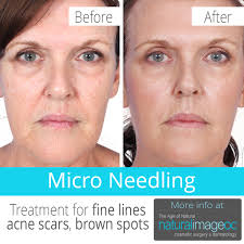 micro needling is a treatment for fine lines acne scars