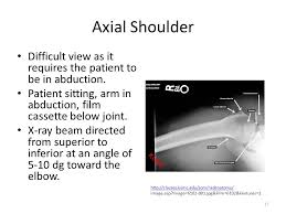 Axial Shoulder Anatomy Musculoskeletal Diseases And Disorders Shoulder Girdle Complex