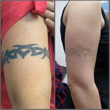 laser tattoo removal modern body art birmingham