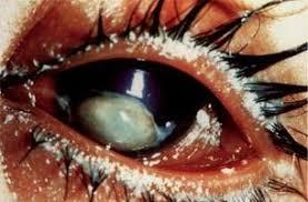 Is Night Blindness Hereditary Night Blindness Thinglink