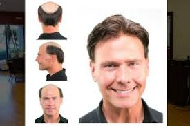 male hair extensions before and after hair extensions replacement regrowth repair and salon specials