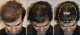 prp hair loss treatment in palm beach florida
