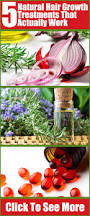 293 best hair loss treatments images on pinterest natural
