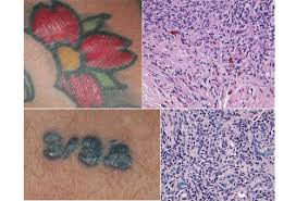 Rug Burn Infection Symptoms Tattoo Skin Reactions Allergies And Infections