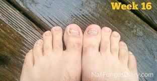 yellow nails toe nail fungus treatment nail fungus update april 2015 nail fungus diary