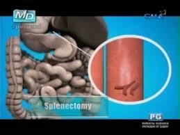 ano ang sakit na schistosomiasis pinoy md