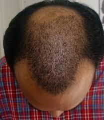 female pattern hair loss u003e u003e u003e read more reviews of the product by