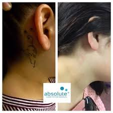 9 best picoway tattoo removal images on pinterest tattoo