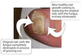 toenail fungus global podiatry