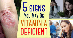 Vitamin A Deficiency Causes Night Blindness The Different Types Of Vitamin A