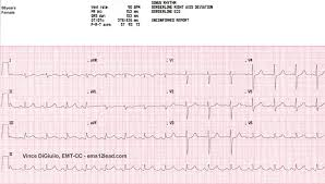 ems 12 lead cardiac rhythm analysis 12 lead ecg interpretation