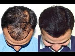 best hairtransplant in the world high density hair transplant in india jaipur delhi at medispa by