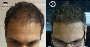 hair transplant month by month pictures cost of hair transplant in mumbai india prime hair studio