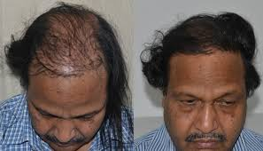 best hairtransplant in the world revision of hair transplant in delhi jaipur best hair surgeon
