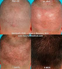 neograft recovery timeline neograft fue hair transplant pioneer bauman medical group