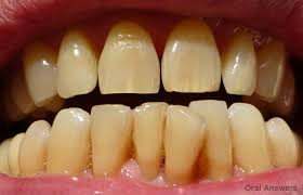 craze lines hairline cracks in your front teeth oral answers