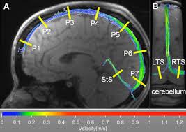 jm lexus parts department acute cerebral venous thrombosis stroke