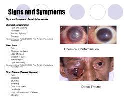 eye pain from light eye injuries