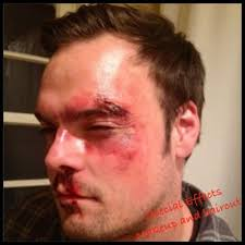 Special Effects Makeup Classes Special Effects Bruises And Cuts Makeup Cuts And Bruises