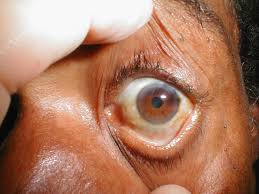 Finding Your Blind Spot In Your Eye A Practical Guide To Clinical Medicine