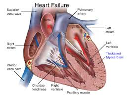 Right Side Human Anatomy Right Side Heart Failure Causes Symptoms Treatment Right Side