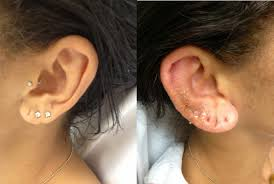 cancer of the ear cartilage complications of ear piercing perichondritis and ear disfigurement