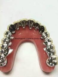 full metal occlusal dental full arch metal ceramic bridge from