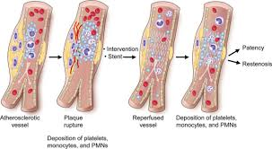 platelets as cellular effectors of inflammation in vascular