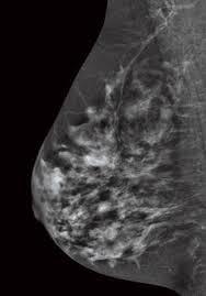 senographe essential ge mammography product