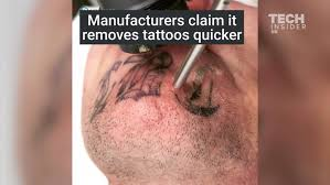 this is how laser tattoo removal works business insider
