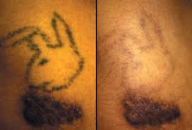 tattoo pictures the scoop on tattoo safety removal and more
