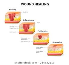 heal a wound stock images royalty free images vectors
