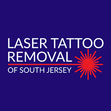 laser my ink tattoo removal south jersey tattoo removal 100