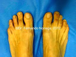 good results make aesthetic foot surgery stronger and stronger