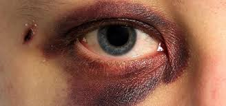 how to make black eyes bruises s fade heal faster in 5 diffe ways