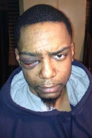 Temporary Partial Blindness Trial To Begin For Hasidic Man Accused Of Beating Black Man