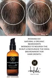 Natural Hair Growth Remedies For Black Hair 148 Best Hair Loss Images On Pinterest Hair Loss Remedies