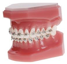 nickel free braces cases 100 nickel free ro rx 20 brackets 5 5 hooks on 3 s