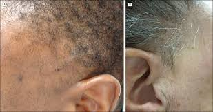 scarring alopecia of the sideburns a unique presentation of