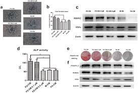 si ge d activit b b zoledronate suppressed angiogenesis and osteogenesis by inhibiting