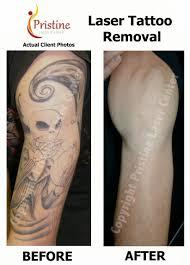 tattoo removal orlando