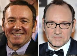 antony cottons hair transplant kevin spacey hair transplant actor sports thicker thatch at