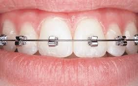 nickel free braces speed braces faces orthodontics