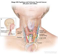 thyroid cancer treatment pdq u2014patient version national cancer