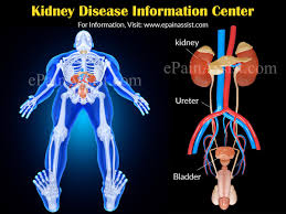kidney infection kidney infection in adults symptoms plaster floor ga